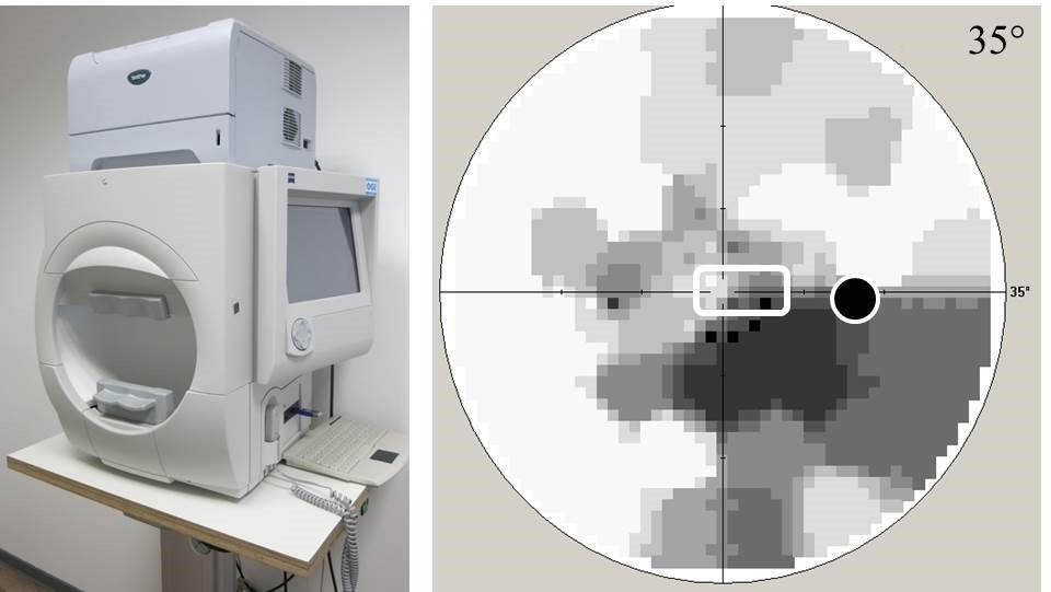 Perimeter und das Gesichtsfeld bei einen Glaukompatienten
